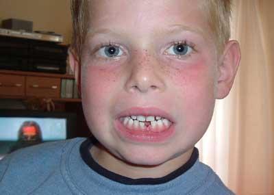 Zahn ist raus …